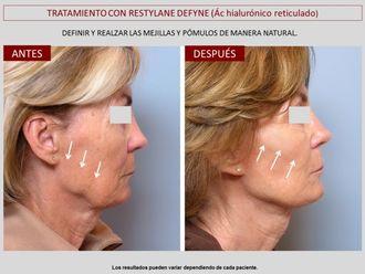 Rellenos faciales-606794