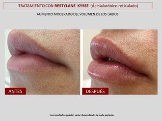 Aumento labios-606796