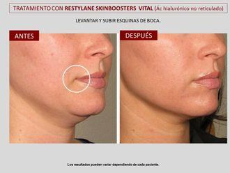 Rejuvenecimiento facial-606798