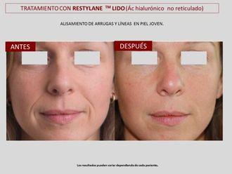 Eliminación arrugas - 606800