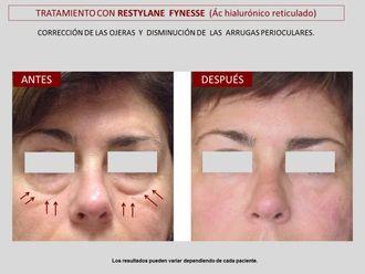 Rejuvenecimiento facial-606801