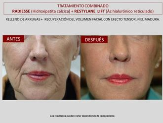 Rejuvenecimiento facial-606807