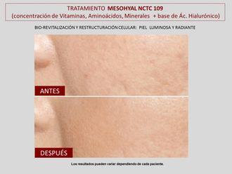 Rejuvenecimiento facial-606808