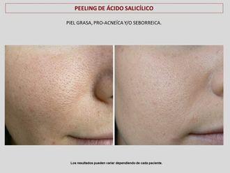 Peeling-606809
