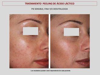 Peeling-606810