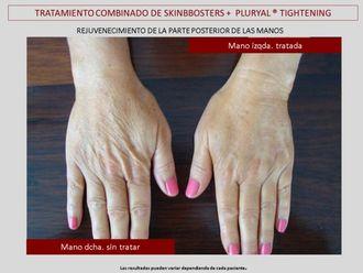 Tratamiento antimanchas-607142