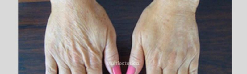 rejvenecimiento manos