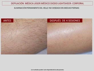 Depilación láser - 607146