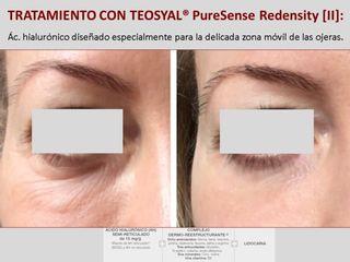 TEOSYAL® PureSense Redensity [II] eliminación ojeras