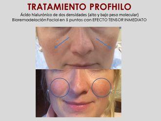 Rejuvenecimiento facial-632596