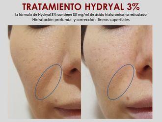Ácido hialurónico-632597