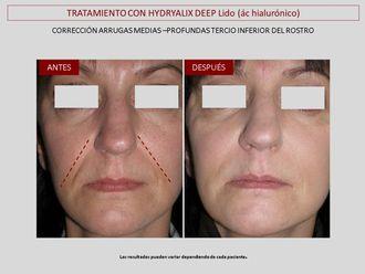Eliminación arrugas - 643107