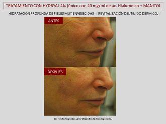 Eliminación arrugas-643108