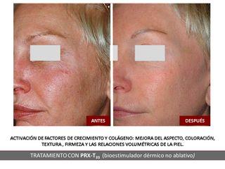 Belia Clinic - Tratamiento con PRX-T