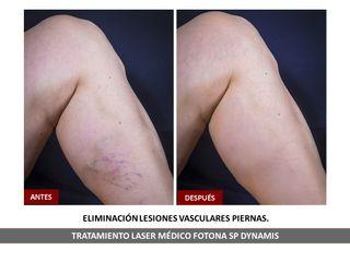 Belia Clinic - Eliminación de lesiones vasculares