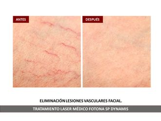 Tratamiento varices - 791855