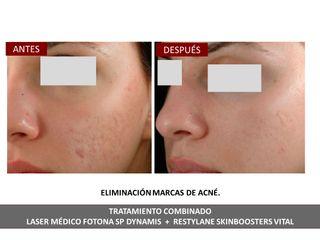 Belia Clinic - Eliminación de acné