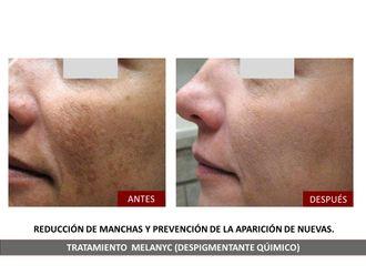 Tratamiento antimanchas-791858
