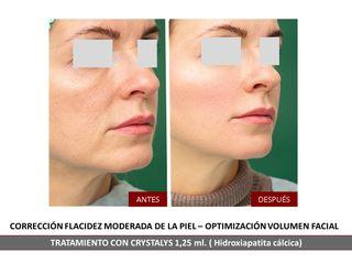 Belia Clinic - Rejuvenecimiento facial