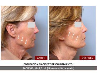 Belia Clinic - Rellenos Faciales