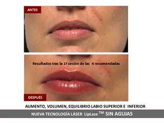 Belia Clinic - Aumento de Labios