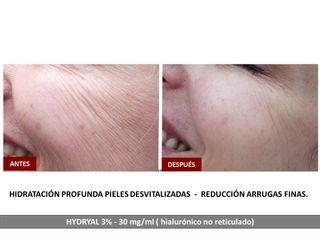 Belia Clinic - Ácido Hialurónico