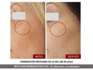 Belia Clinic - Hidratación de la piel