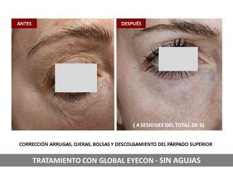 Rejuvenecimiento facial - 791888