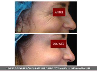 Belia Clinic - Botox
