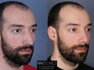 Antes y después Rinoplastia