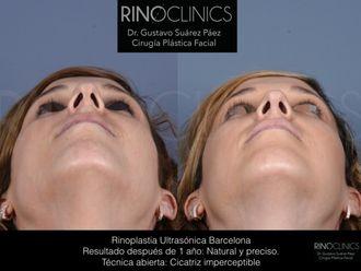 Rinoplastia-626585