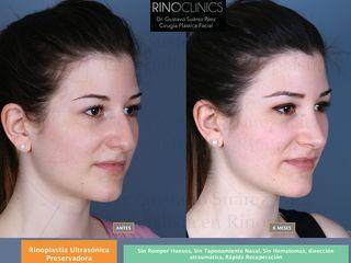 Antes y después Rinoplastiapreservadorabarcelona