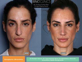 Antes y después Rinoplastia ultrasónica
