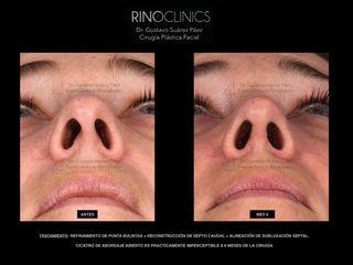 Antes y después rinoplastia ultrasónica barcelona