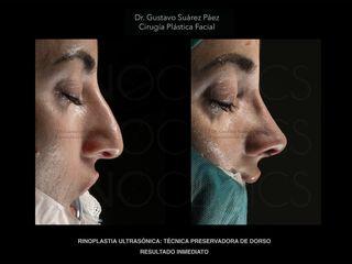 Antes y después rinoplastia ultrasonica barcelona