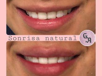 Aumento labios-786316