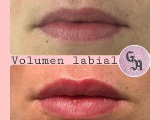 Aumento labios-786321