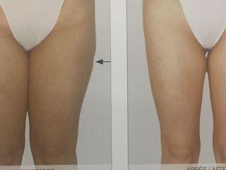 Antes y después LPG corporal