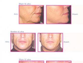 Rejuvenecimiento facial-281331