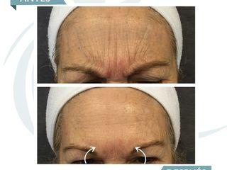 Antes y después Botox entrecejo