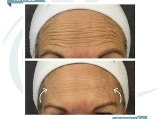 Antes y después Botox en la frente