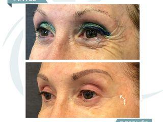 CIME antes y despues - Botox patas de gallo