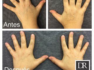 Antes y después Despigmentante - Rejuvenecimiento laser manos