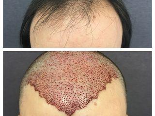 CIME antes y despues - Microinjerto capilar