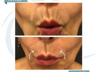 Antes y después Acido Hialuronico - arrugas peribucales o código de barras