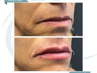 Antes y después Acido hialuronico - Perfilado de Labios