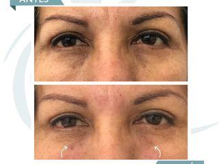 Antes y después Acido Hialuronico - Ojeras