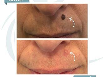 Dermatología-637276