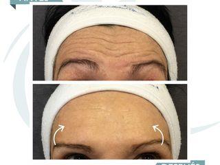 CIME antes y despues - Botox en frente