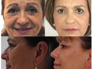 Rejuvenecimiento global del rostro